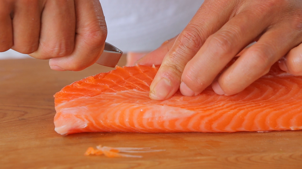 Doctors remove live worm from woman's tonsil