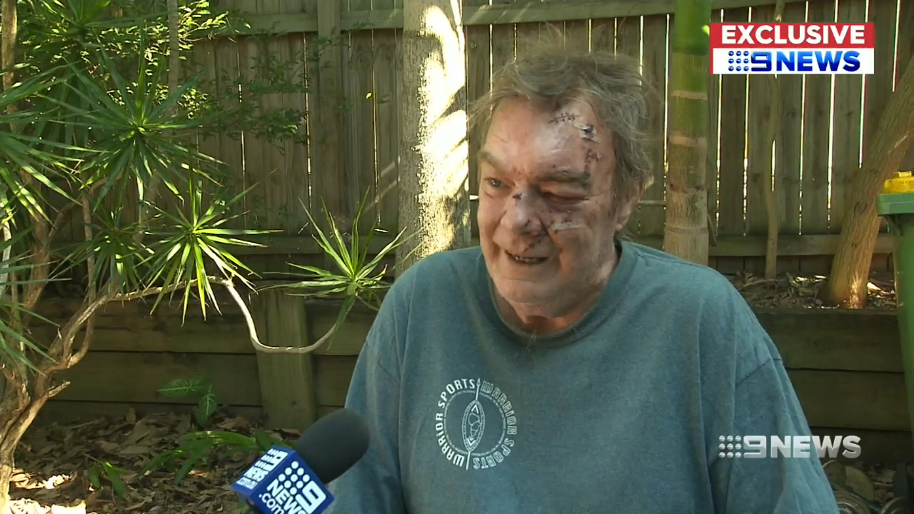 Man brutally attacked in his Gold Coast home