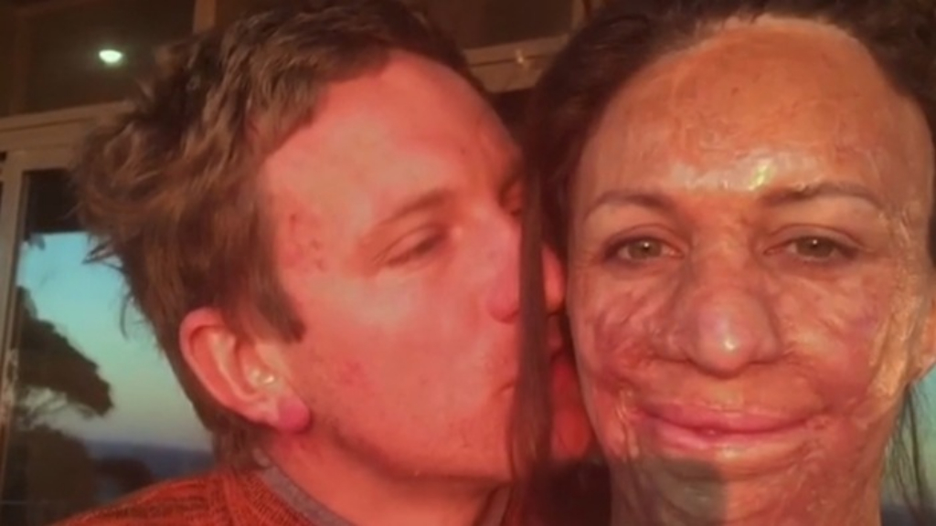 Turia Pitt announces second pregnancy