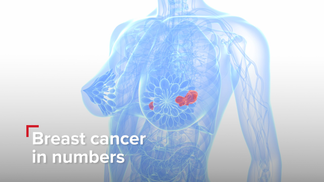 Breast cancer in numbers