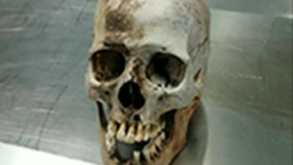 Children dig up man's skull in Campbelltown park