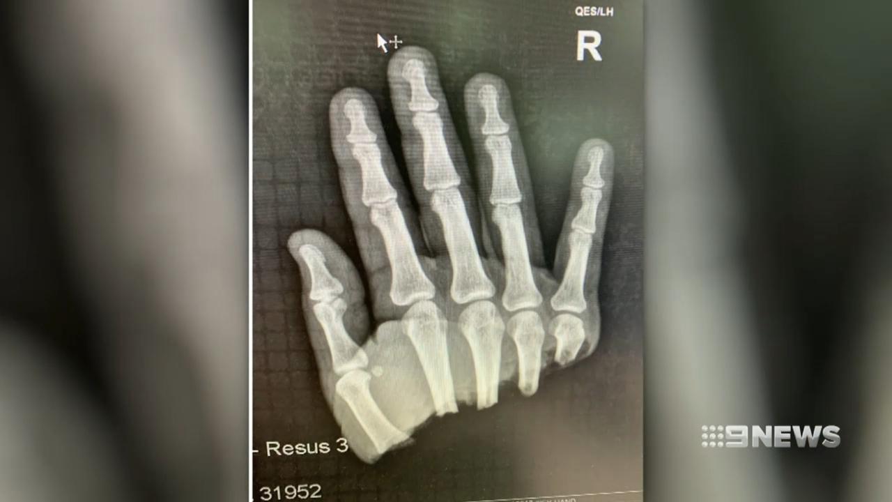 Brisbane hand reattachment surgery a success