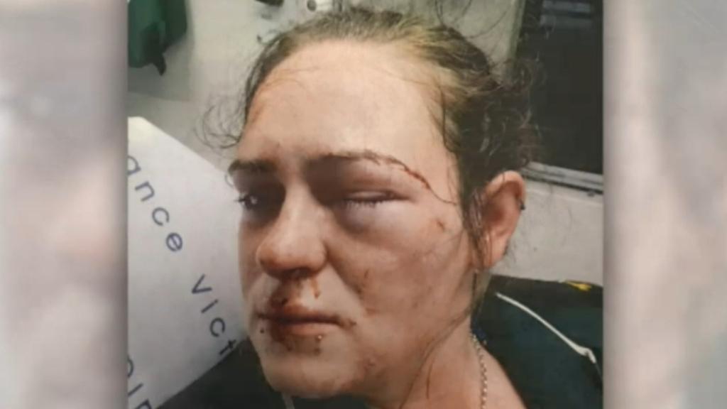 Alleged Melbourne paramedic basher avoids jail