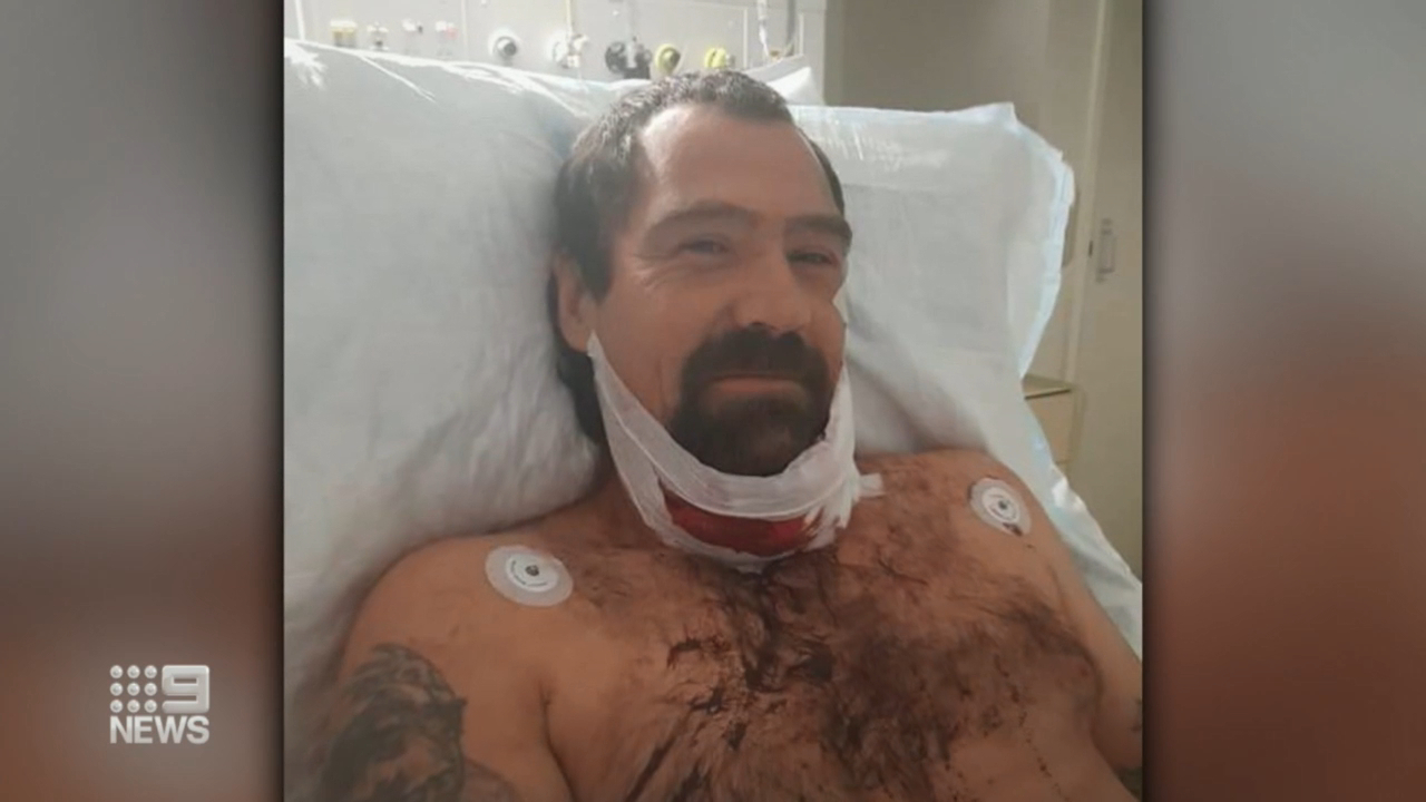 Perth grandfather speaks on son-in-law's attack