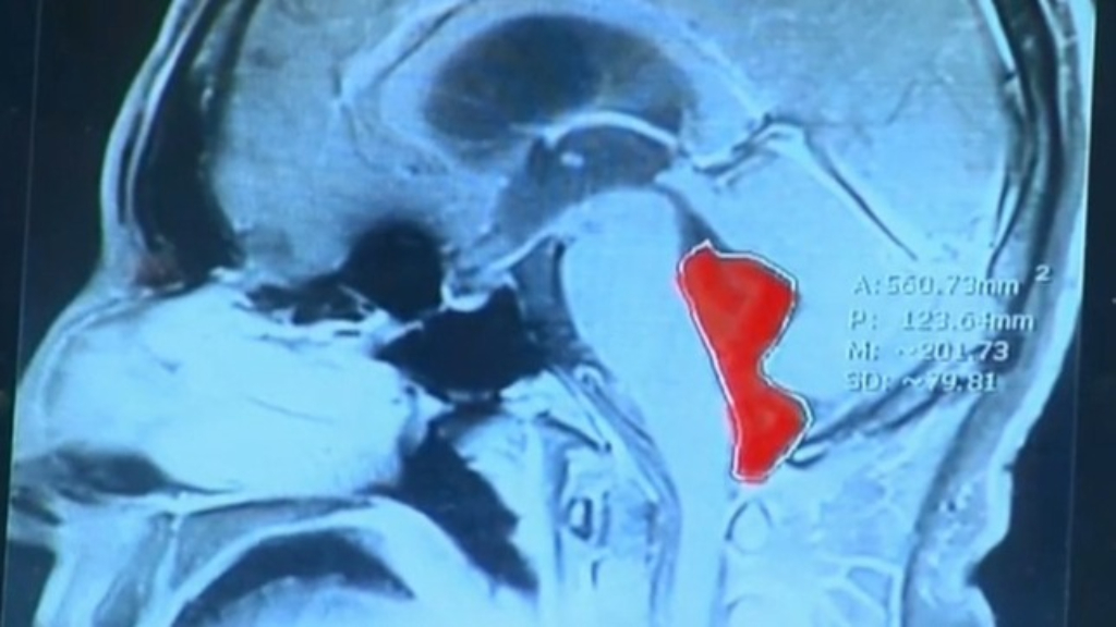 Tapeworm removed from Texas man's brain