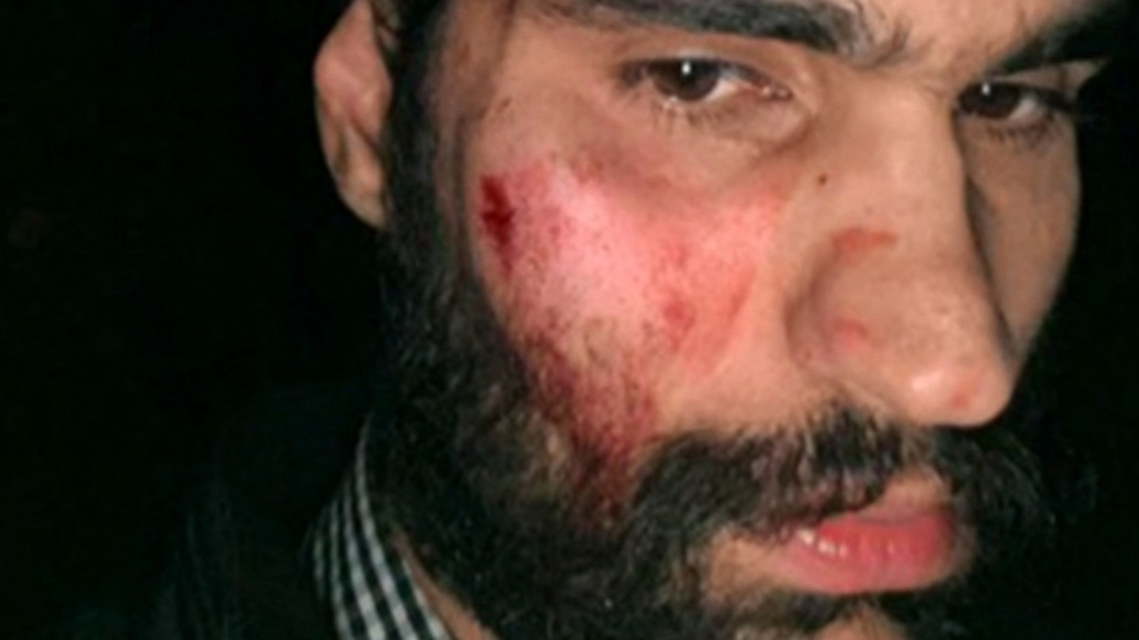 Taxi driver fears for his life after attack