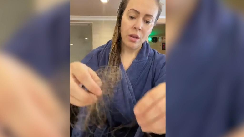 Alyssa Milano reveals hair loss following COVID-19 diagnosis