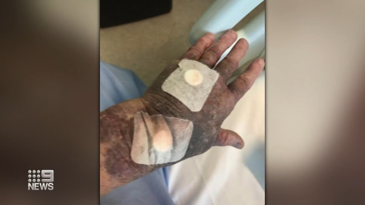 Elderly woman develops severe bruising days after vaccine