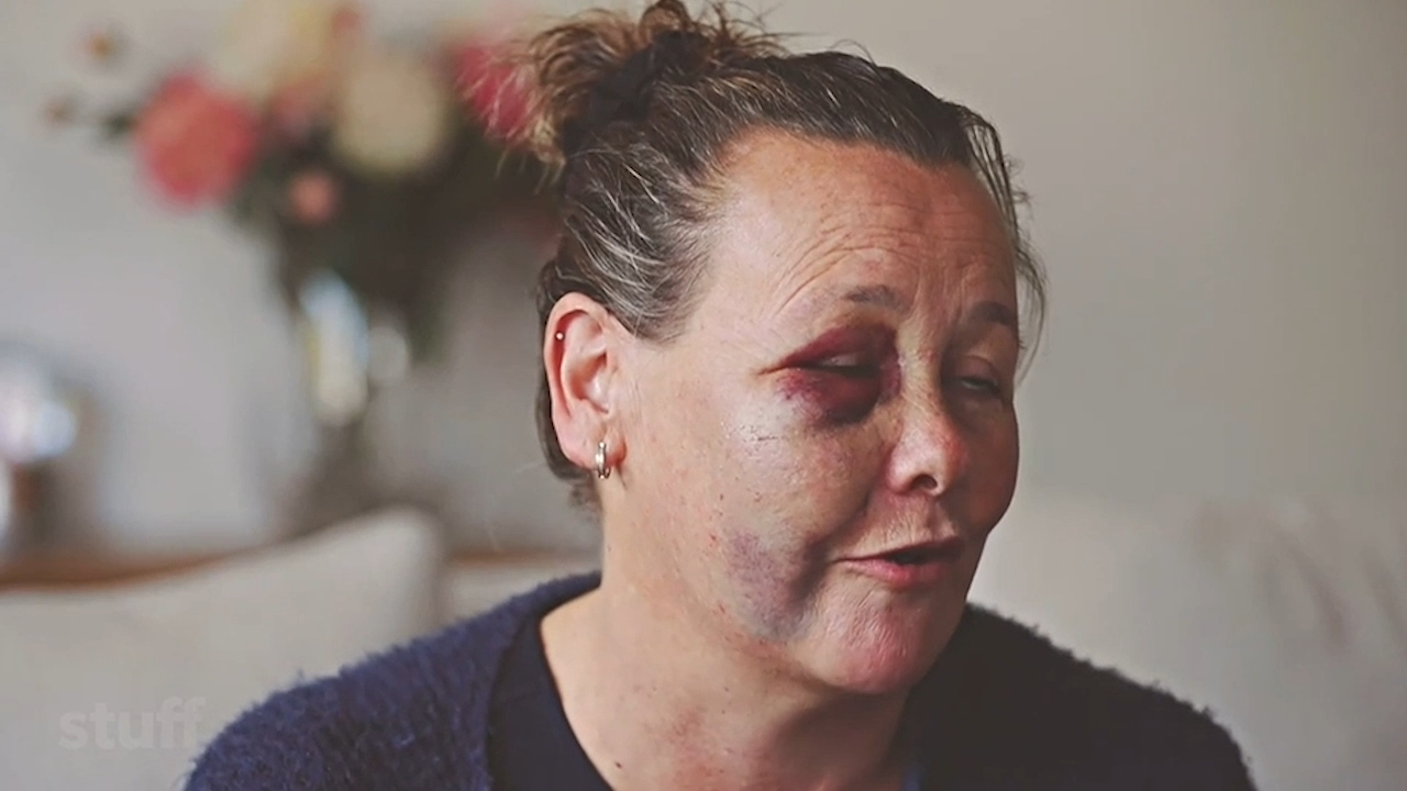 NZ woman seriously hurt in disc golf